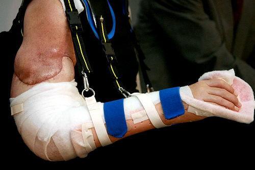 Karl Merk new arm transplants