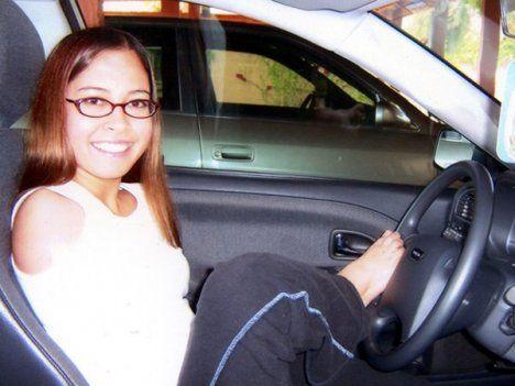 Reduction deformity driving a car