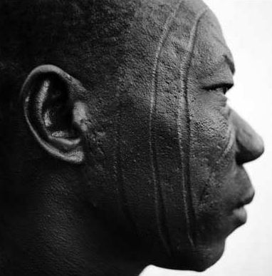 Cool facial scar