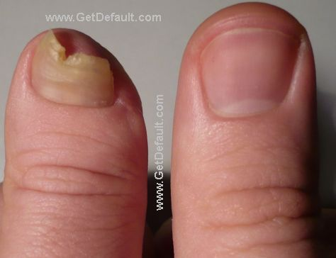 finger 7 month amputation
